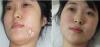 面部白斑治疗要注意什么