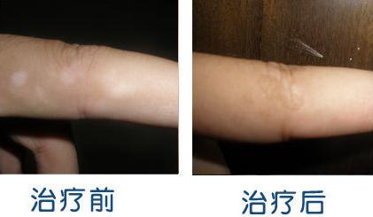 手部白癜风复发的几大外因