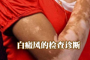 女性肢端型白癜风的早期症状