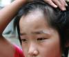 儿童早期的白癜风诊断方法是什么