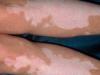 肢端型白癜风对男性有哪些危害