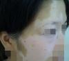 女性白斑是由于什么引起的呢